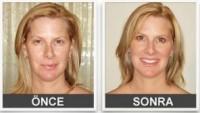 Yüz Kırışıklıklarına Karşı Etkili Bir Çözüm: LifeCell