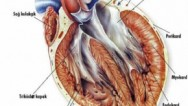 Kalp Krizinin Tanımı, Belirtileri ve Nedenleri