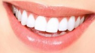 Dişlerimizi Koruyan Önemli Besinler